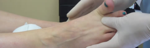 The assessment of the range of motion the 1st toe joint